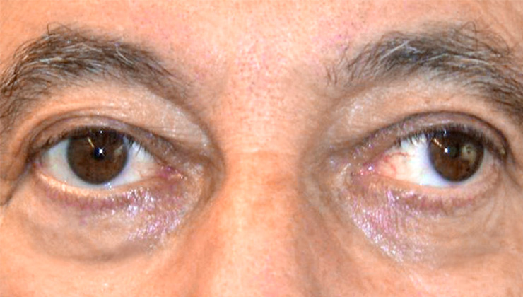 strabismus-surgery-adults