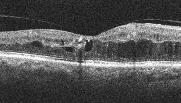 OCT d'edema macular diabètic