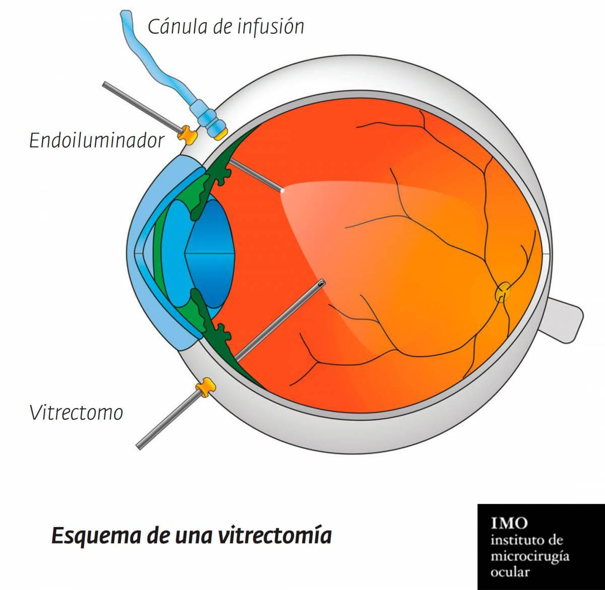 Vitrectomy structure