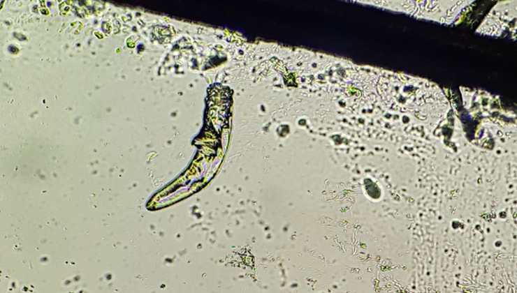 Demodex al microscopi