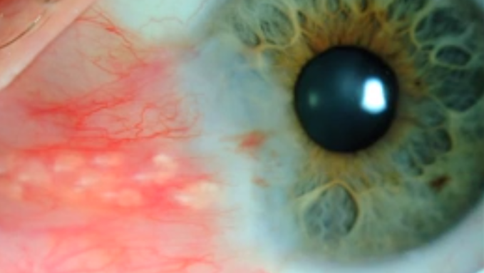 Pterygium photo