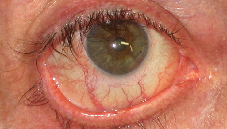 Orbital infections and inflammations