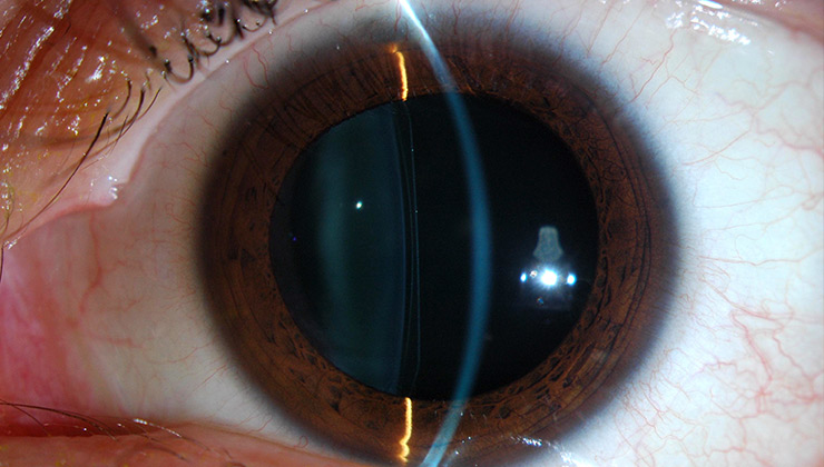 Refractive surgery with intraocular lenses