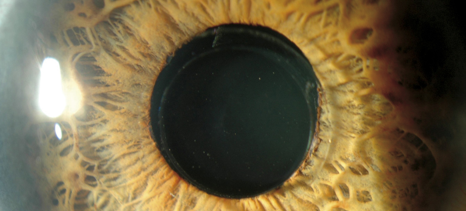 lente intraocular catarata