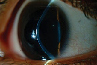Keratoconus. Increased curvature and central protrusion