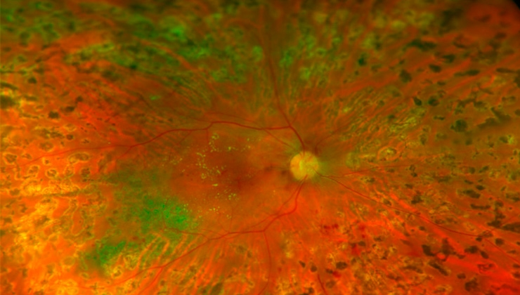 The diabetic eye. Diabetic retinopathy