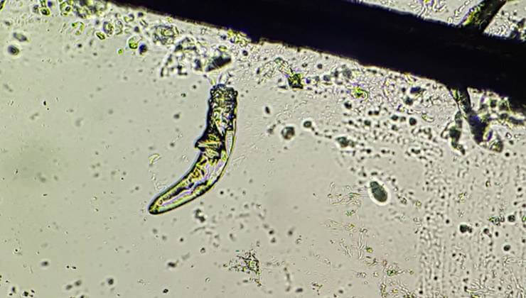 Demodex en el microscopio