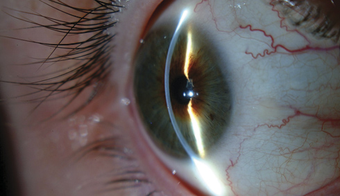 Curvature of a normal cornea