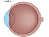 An eye without a cataract